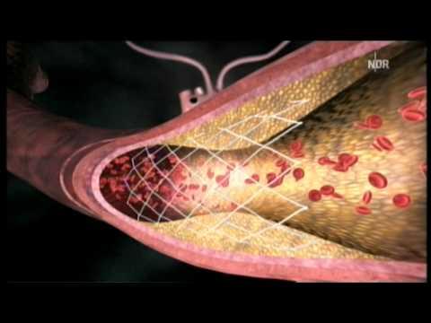 Arteriosklerose - Stent oder Bypass