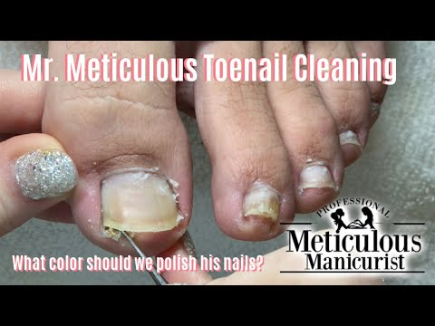 👣Mr. Meticulous Satisfying Impacted Toenail Cleaning Holiday Specials Announcement👣
