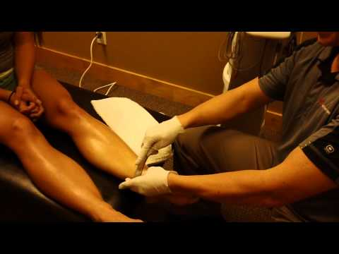 Shin Splint Treatment Graston IASTM Sports Medicine Specialist