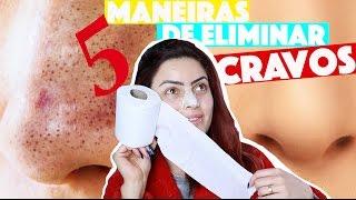 COMO REMOVER CRAVOS DO NARIZ EM 2 MINUTOS - 5 TÉCNICAS CASEIRAS | KIM ROSACUCA