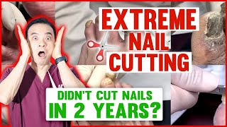 6 EXTREME nail cuts (2 years long nails, ram's horn fungal toenails and more!) | Dr. Kim