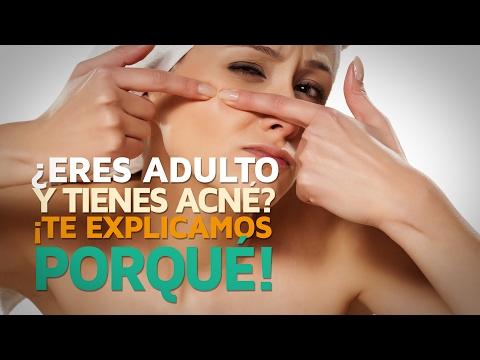 ¿Eres adulto y tienes acné? ¡Te explicamos porqué!