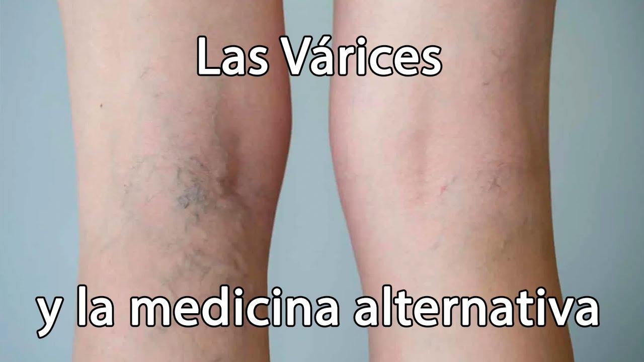 apiterapia varicoza)