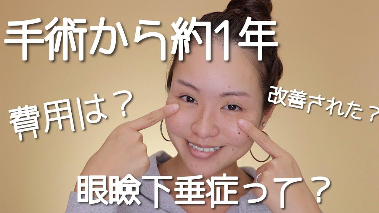 眼瞼 手術 下垂 した アキ子 和田 の