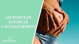 Les points de suture de l'accouchement - La Maison des maternelles #LMDM