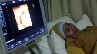 Perkembangan Janin 3 bulan (12 minggu) #BabyG (USG Bayi) | fetus development stages