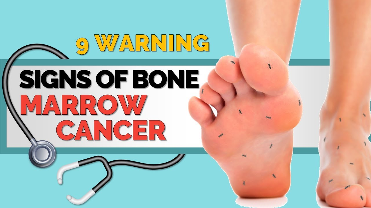 What are the Causes of Bone Marrow Cancer in Children