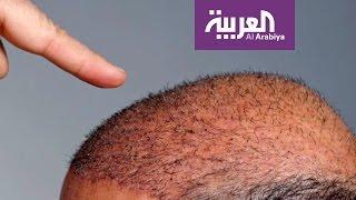 صباح العربية: تقنية جديدة لزراعة الشعر دون جراحة