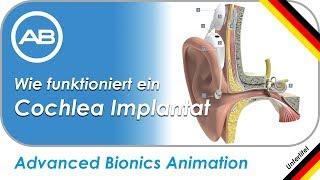 Wie funktioniert ein Cochlea Implantat (CI) von Advanced Bionics?  (Deutsch mit UT)