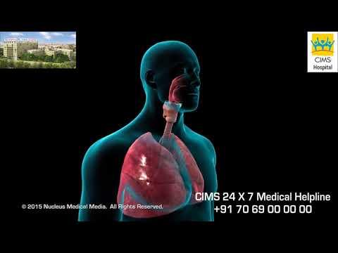 Bronchoscopy (Hindi) -