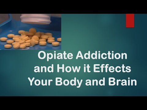 How Opiate Addiction Happens and How To Recover