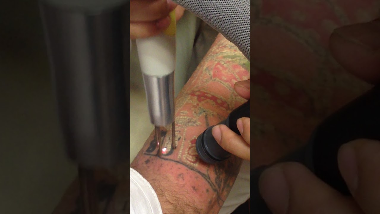 Laser Tattoo Removal in Brentwood, TN and Nashville