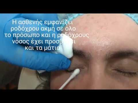 Ροδόχρους νόσος οφθαλμών - Θεραπεία - BioLaser