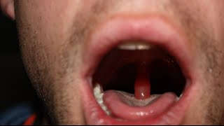 swollen throat: clinical case answer and discussion