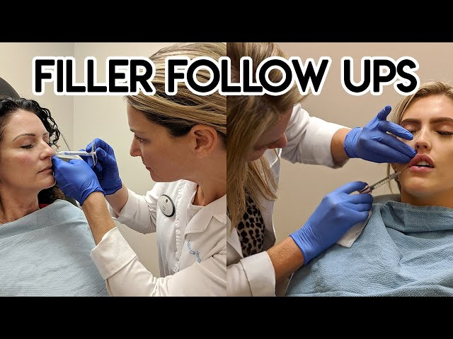 Filler Follow Ups