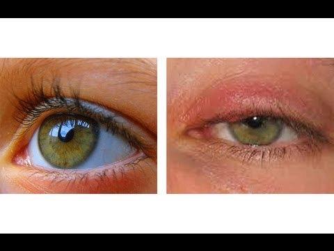 How To Cure An Eye Infection In Hours