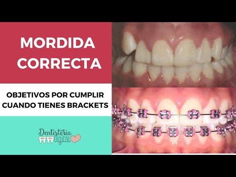 Cómo Debe Quedar La Mordida Después De Los Brackets - Ortodoncia