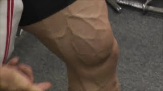 How to Do Occlusion Training 101--Quads and Hamstrings!