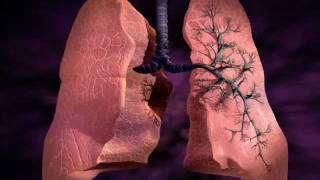 Type V Collagen Autoimmunity & Idiopathic Pulmonary Fibrosis (IPF)