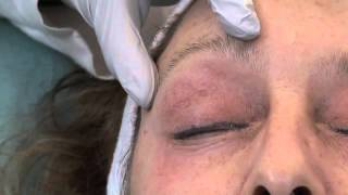 Dr. Julie Edween- Eye wrinkles treated with a Chemical Peel