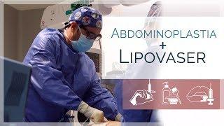 Redefine tu figura, Abdominoplastia + Lipovaser | Dr. Quintero | Clínicas LeClinic's