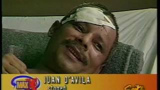 Right Frontal Lobe Traumatic Brain Injury