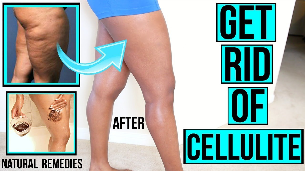 How To Get Rid Of Cellulite Naturally At Home