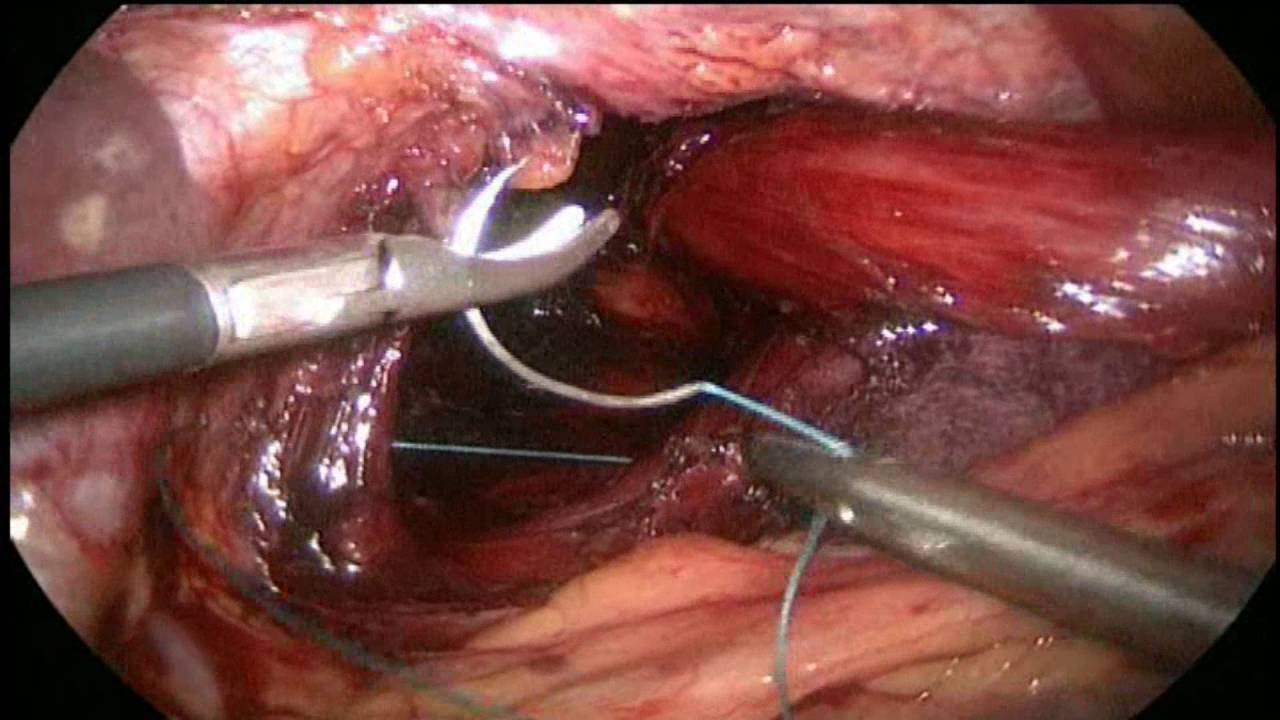 Large Hiatal Hernia Surgery Using the LINX System