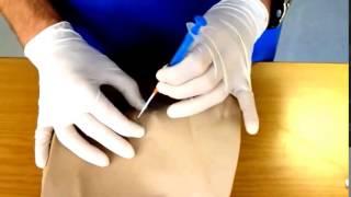 Needle Cricothyroidotomy