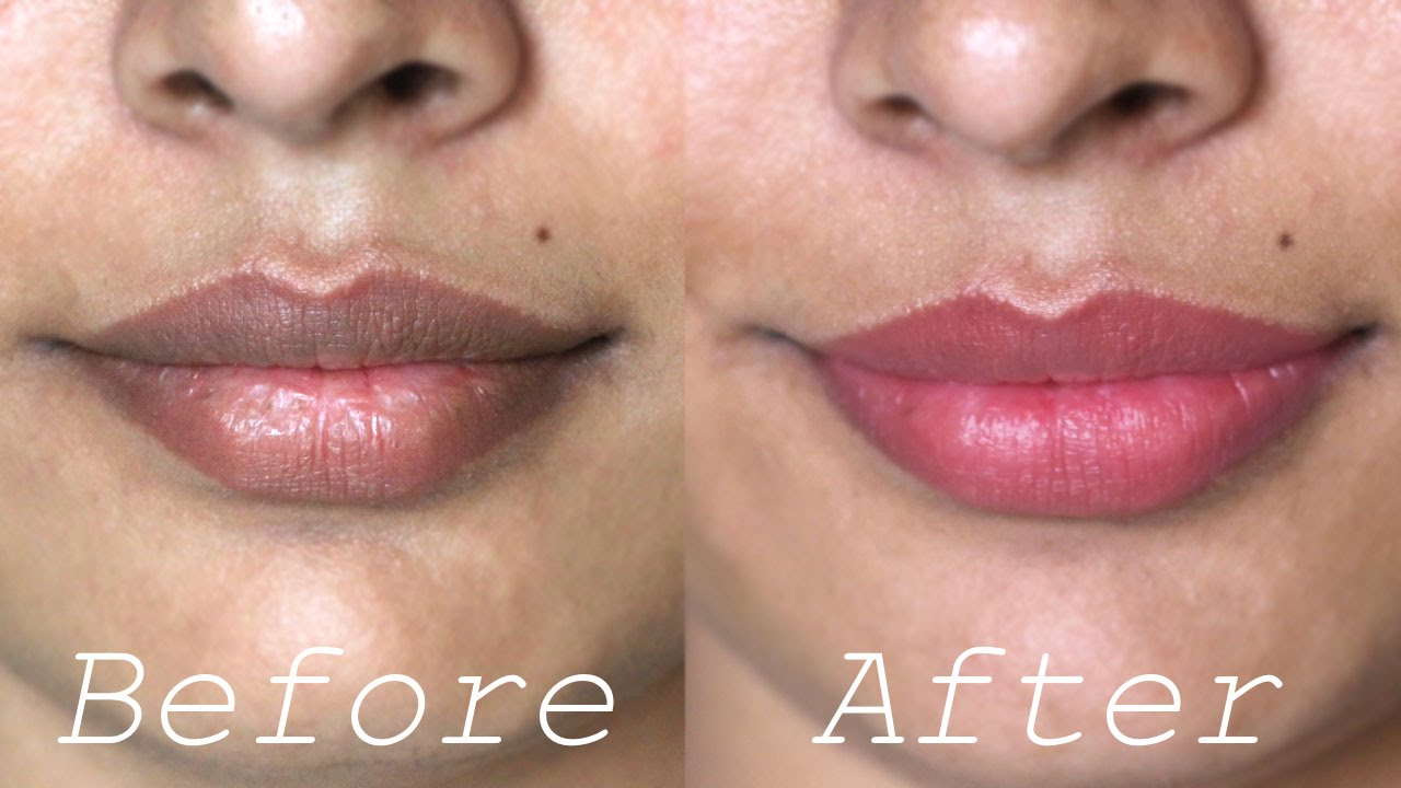 How to Lighten Dark Lips Naturally - Rapid Home Remedies