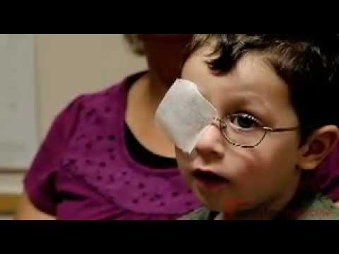Lazy Eye in Children and Discrimination - IN Depth