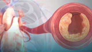 Tipos cardiovasculares cuantos de hay enfermedades