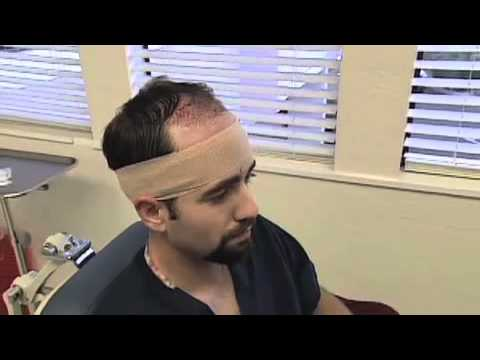 What is recovery like after hair transplant surgery?