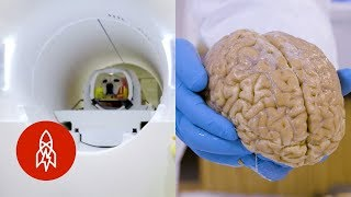 4 Mind-Blowing Stories About the Brain