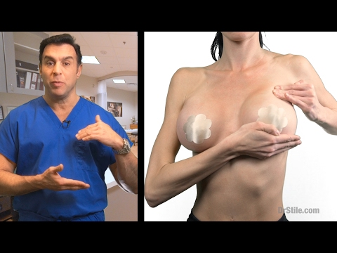 Post Operative Breast Massage