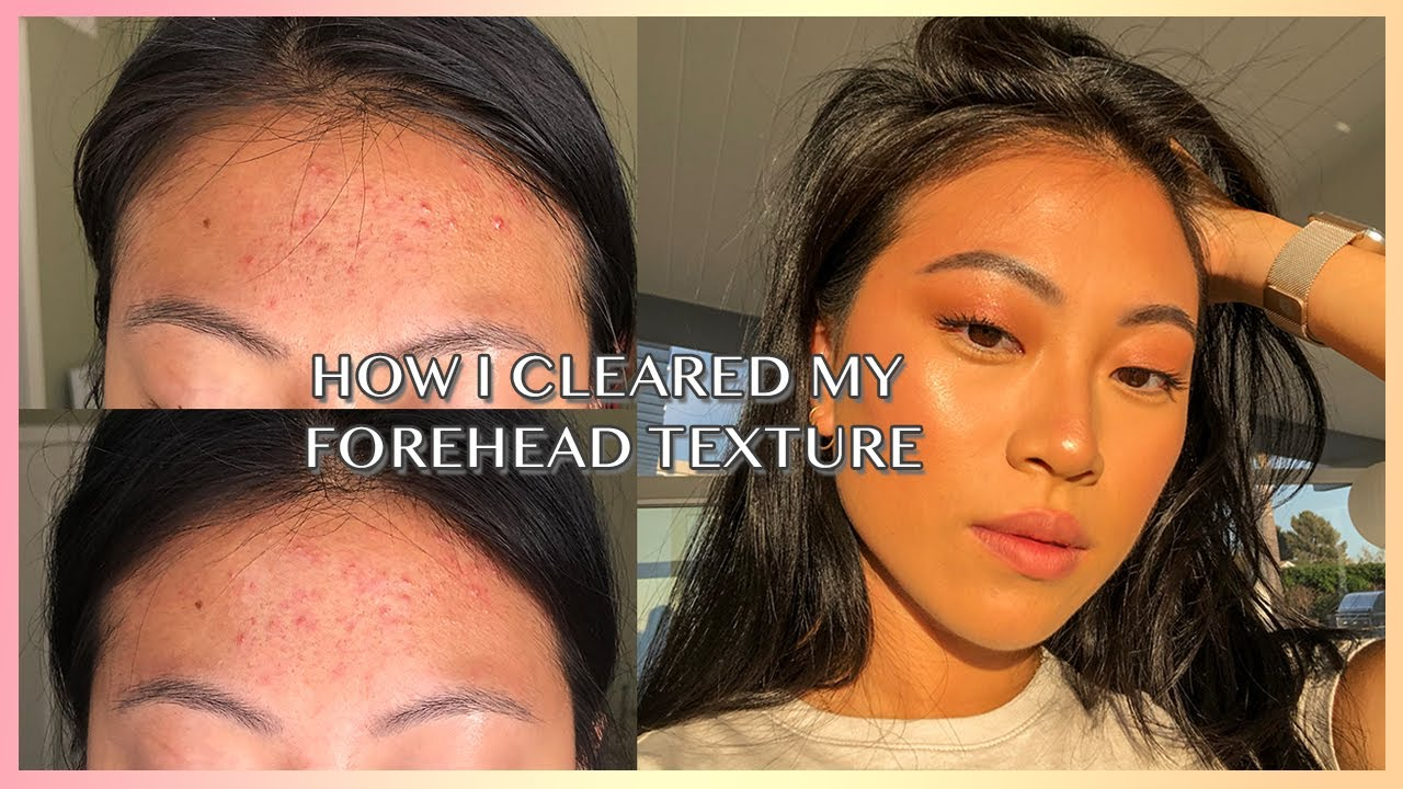 How To Really Get Rid Of Forehead Acne Texture Christine Le Youtube