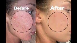 КАК УБРАТЬ ТЕКСТУРНУЮ КОЖУ??/Fungal Acne