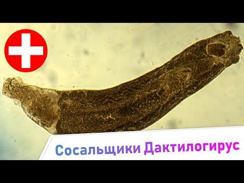 Сосальщики Дактилогирус - Симптомы и Лечение. Жизненный цикл паразита