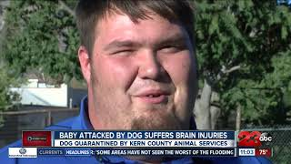 Tehachapi baby attacked by dog suffers brain injuries