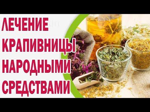 Лечение крапивницы народными средствами