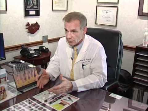 Hair Transplant Interview with Tony Mangano, Mark D. Baxa, M.D. Charlotte, NC.