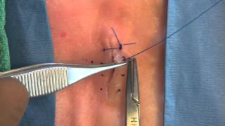 3 Interrupted Sutures: Simple, Vertical Mattress, & Horizontal Mattress.mov