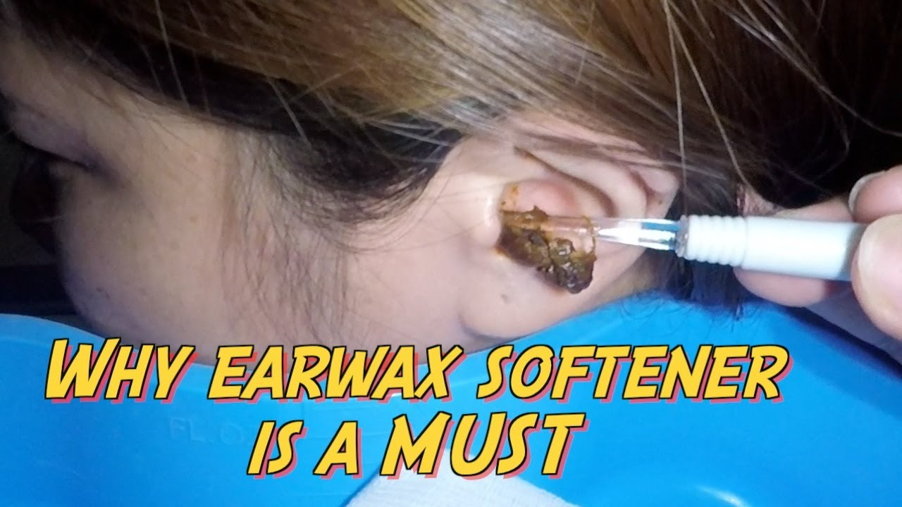 how to know if you have ear wax build up