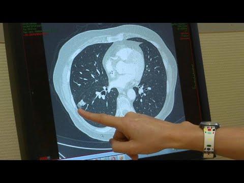 Cancer du poumon: le dépistage par scanner pourrait-il sauver des milliers de vies?