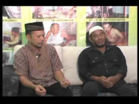 UDIN SYAHRUDIN PENDERITA SETROK dari Tanjung Balai Karimun RIAU