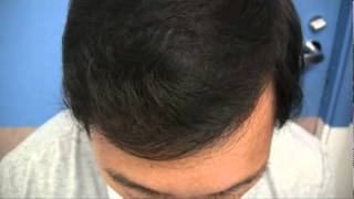 Hair Transplant Video - 1984 Grafts 1 Session - Dr Wong