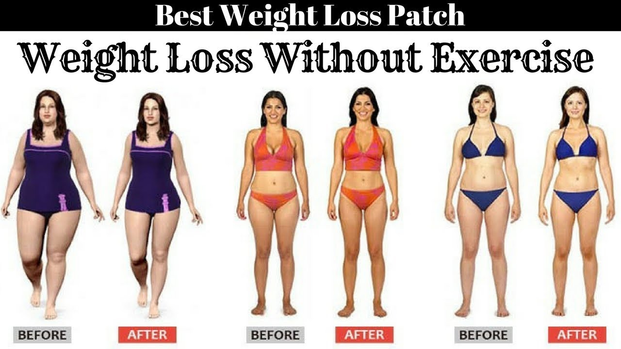 can weight loss without exercise