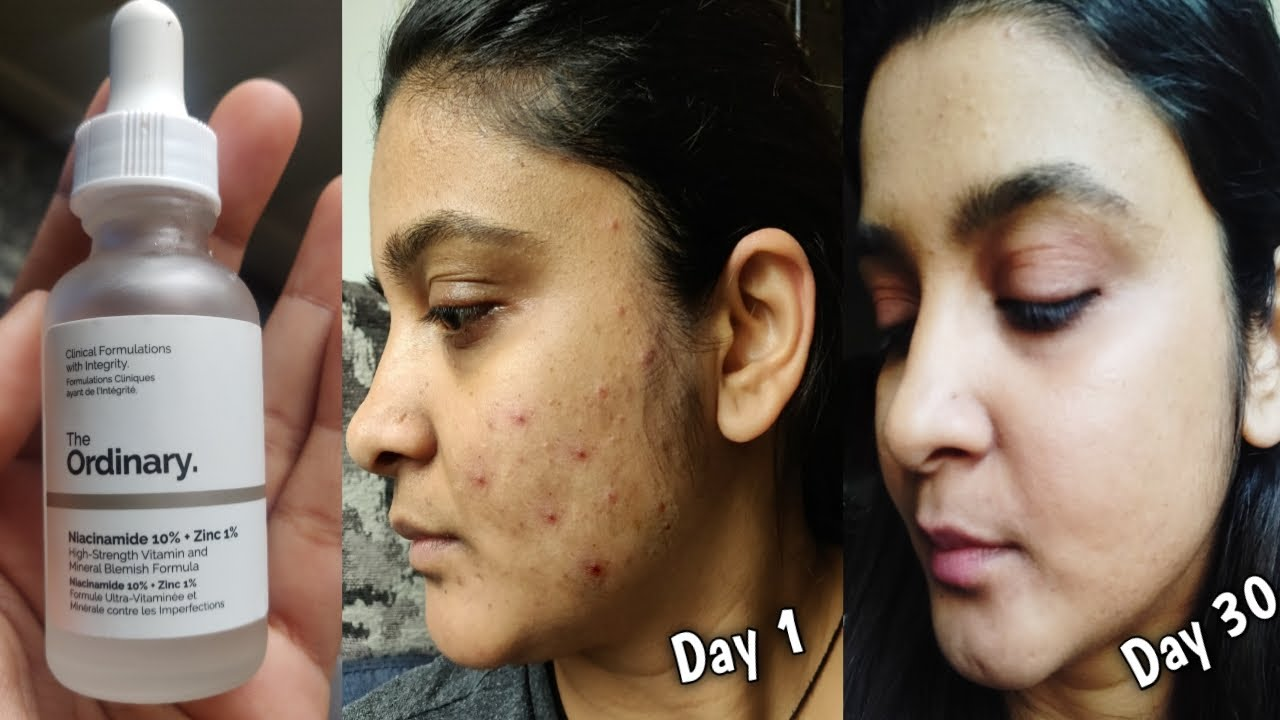 How I Cleared My Acne Within 30 Days The Ordinary Niacinamide 10 Zinc 1 How To Get Rid Of Pimples Youtube
