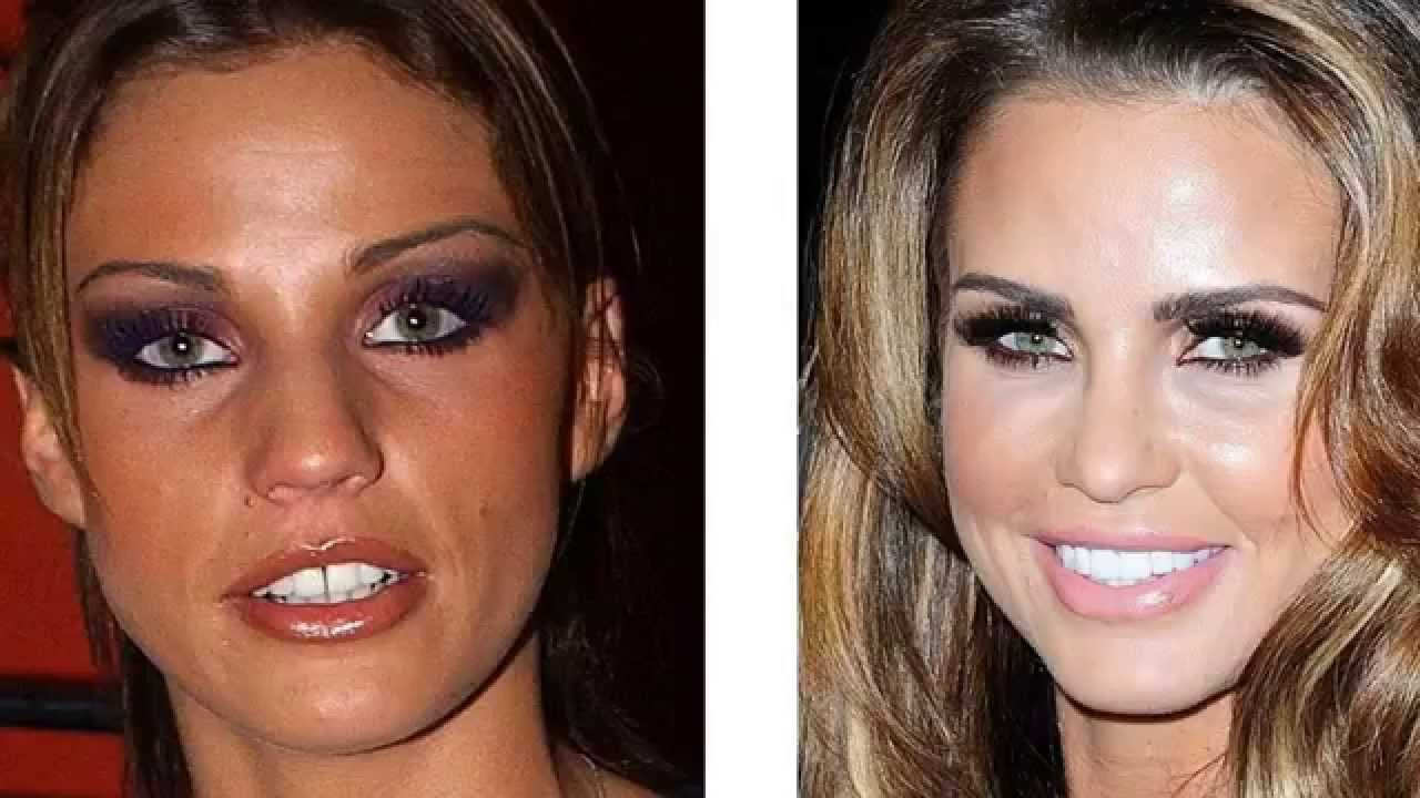 hollywood stars - before and after photos good teeth can change