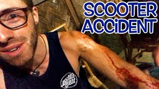 SCOOTER ACCIDENT IN THE PHILIPPINES (I LOVE FILIPINO PEOPLE)